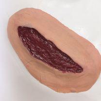 Fleischwunde Applikation
